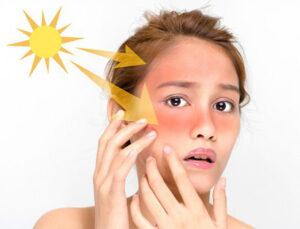 Bí quyết bảo vệ làn da trước độc hại tia UV trong mùa nắng gắt